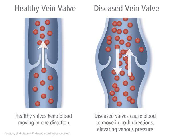 healthy-vein-diseased-vein[1]