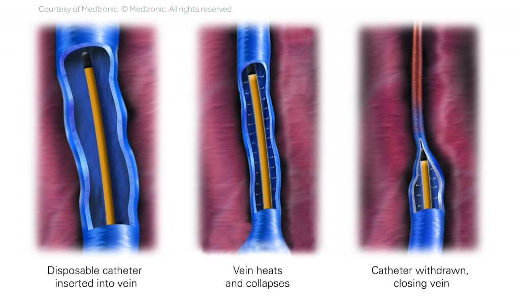 Diagram illustrating how a radiofrequency ablation catheter closes and removes varicose veins