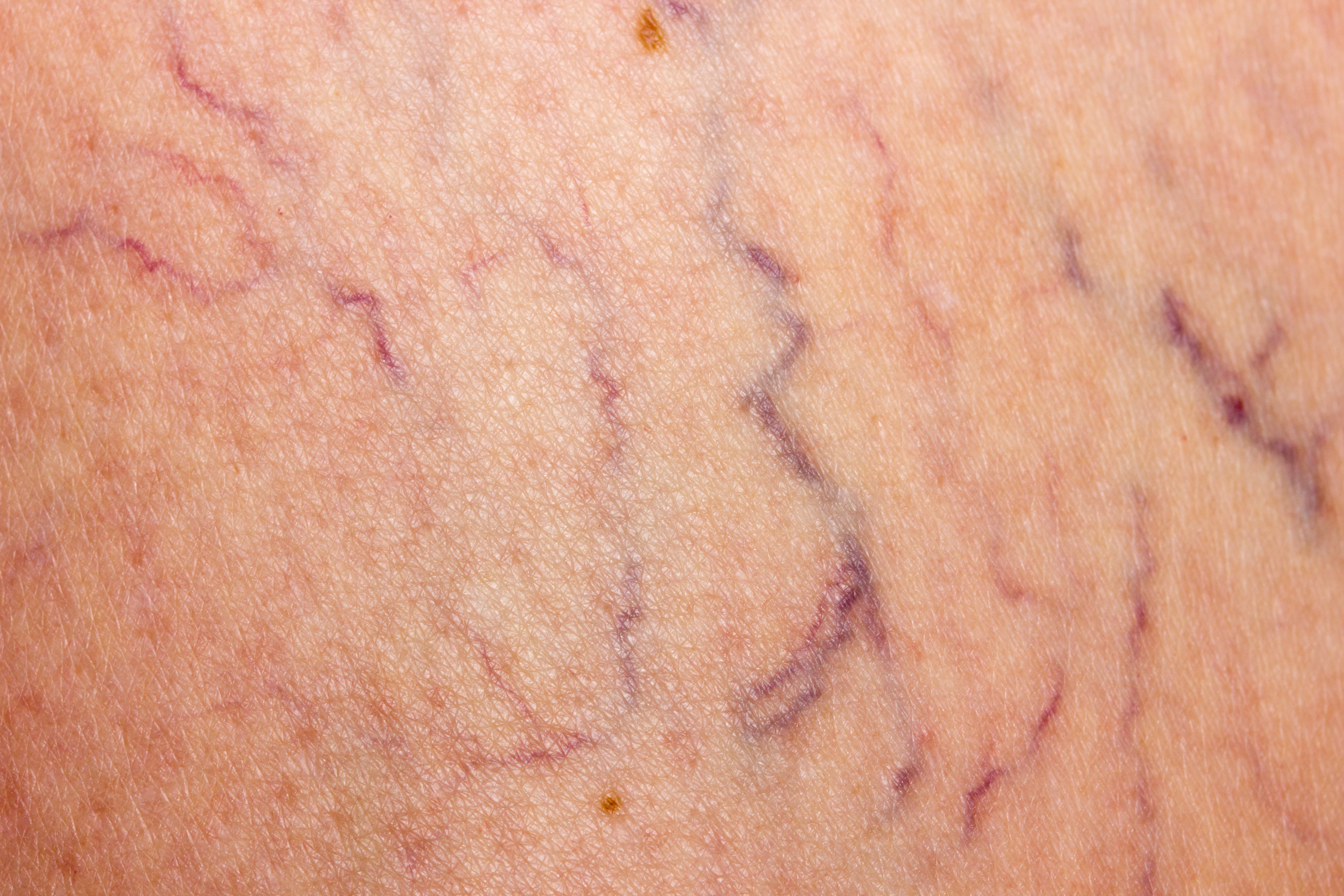 New Study Links Varicose Veins And Blood Clots Heart Of Dixie Vein