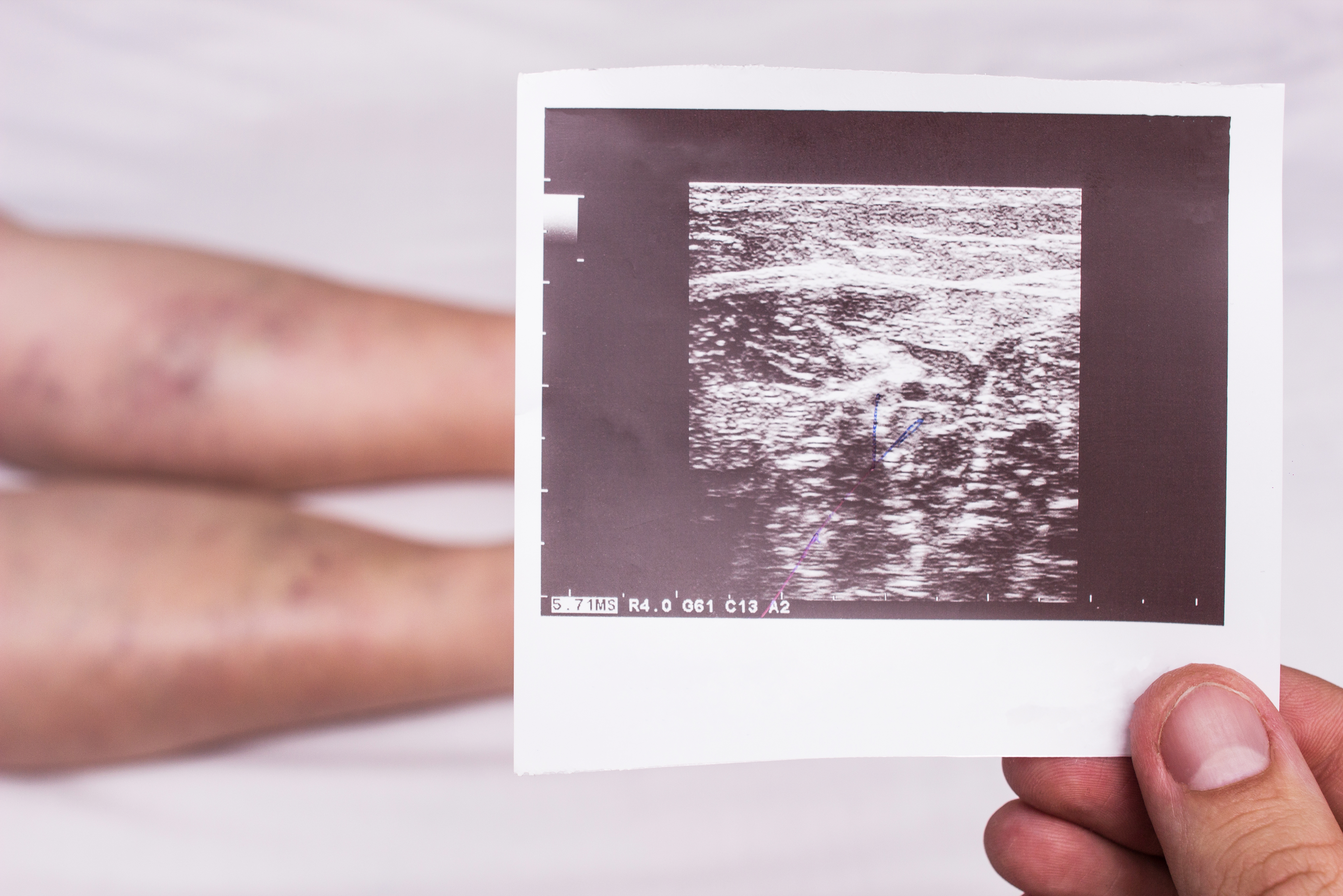 Vascular doctor holds ultrasound picture showing deep vein thrombosis in elderly woman patient's legs