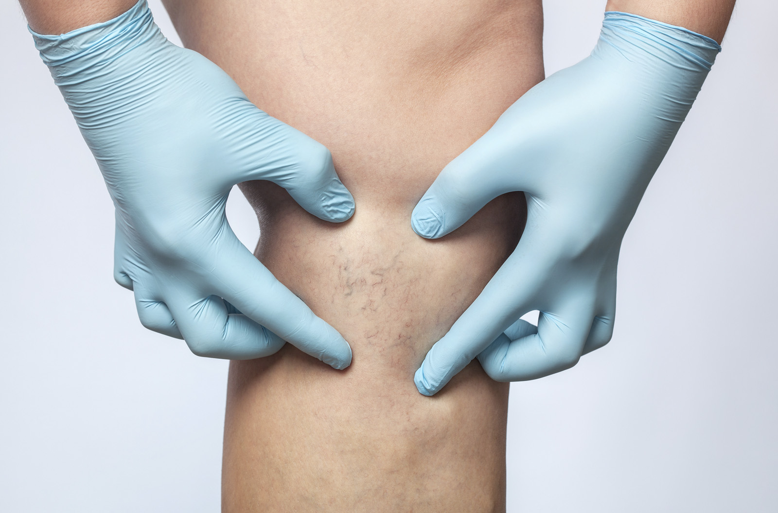 What You Need To Know About Chronic Venous Insufficiency ...