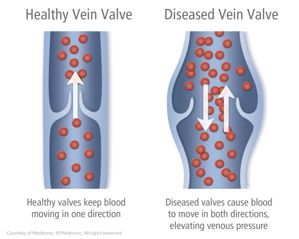 Diagram illustrating venous insufficiency that can cause leg cramps, aching, swelling, and other leg pain